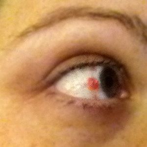 This little capillary break is the only thing visible from the surgery. It feels fine.