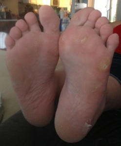 This is the state of my feet and toes after a race.